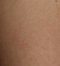 Brown Spots, Wart and Scar Removal